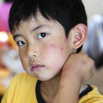 Como proteger as crianças da dengue
