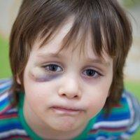 Como deve se comportar a criança quando outras crianças a agridem