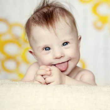 As crianças e bebês com Síndrome de Down
