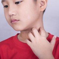 Como aliviar as coceiras provocadas pela dermatite infantil