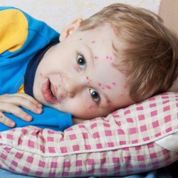 Atenção também com a varicela