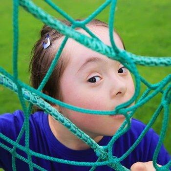 Menos crianças com Síndrome de Down