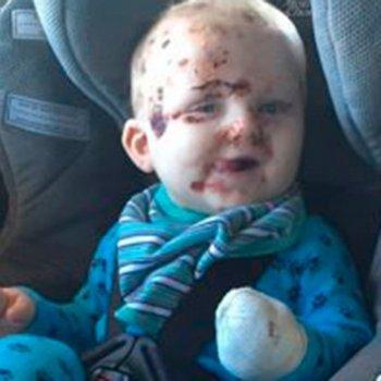 O que pode acontecer se você não vacinar o seu bebê contra a catapora