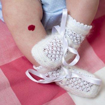 Manchas de nascença nos bebês. Tudo o que você deve saber