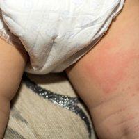 Bebês com Assaduras ou Eczemas