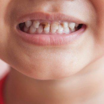 O que significa se a criança sonha que os seus dentes caem
