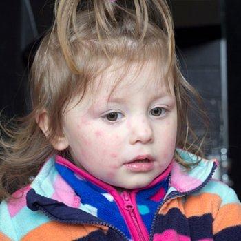 Molusco contagioso em bebês e crianças