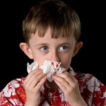 Hemorragias. Primeiros socorros em crianças