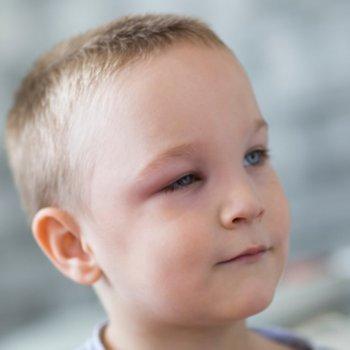 Remédios naturais contra o terçol em crianças