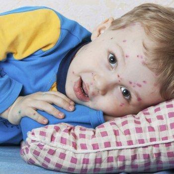 Bebês com Catapora ou Varicela. Doenças infantis